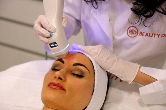 Zabieg redukcji niedoskonałości twarzy wykonywany laserem frakcyjnym Palomar Emerge