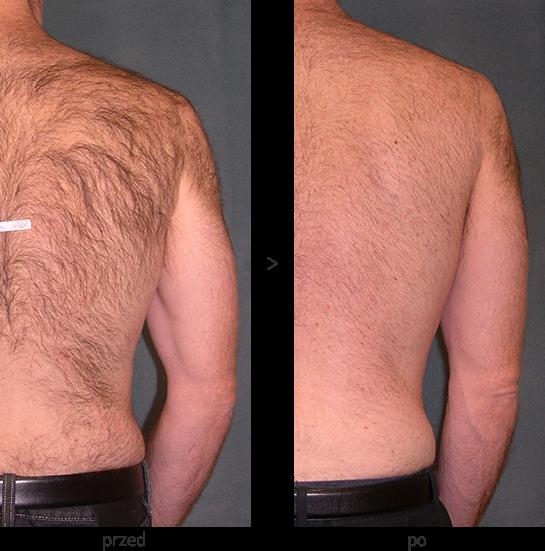 Laser diodowy Vectus w Beauty Duty Warszawa - usuwanie włosów z pleców - efekt przed i po