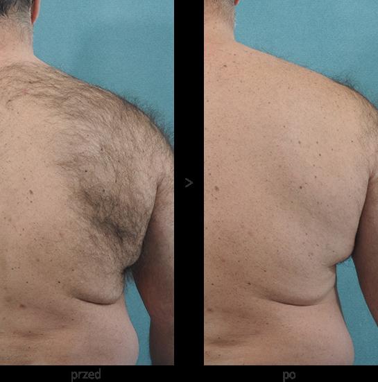 Laser diodowy Vectus w Beauty Duty Warszawa - depilacja pleców - efekt przed i po