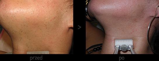 Laser diodowy Vectus w Beauty Duty Warszawa - usuwanie włosów z brody i szyi - efekt przed i po