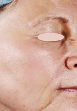 Kobieta po zabiegu laserem frakcyjnym Emerge
