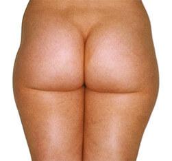 Efekt eliminacji tkanki tłuszczowej z pośladków i ud - przed zabiegiem Lipomassage