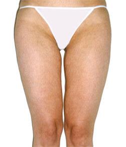 Redukcja tłuszczu na udach - efekt po zabiegu Lipomassage