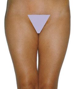 Redukcja tłuszczu na udach - przed zabiegiem Lipomassage