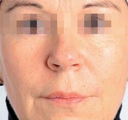 Zabieg kosmetyczny Endermolift na twarz - efekt po