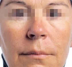 Zabieg kosmetyczny Endermolift na twarz - przed zabiegiem