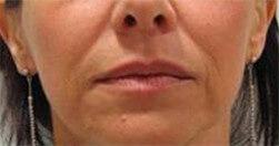 Efekty zabiegu na twarz Trilipo Legend - efekt przed