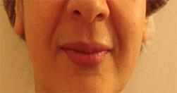 Efekty zabiegu na twarz Trilipo Legend - efekt po
