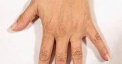 Efekty zabiegu na dłonie Trilipo Legend - efekt przed