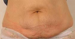 Efekty zabiegu na brzuch Trilipo Legend - efekt przed