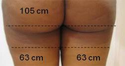 Ujędrnienie pośladków i redukcja cellulitu Trilipo Legend - efekt po zabiegu