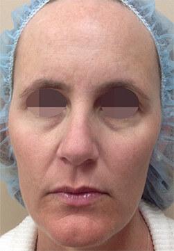 Efekt zabiegu Voluderm Legend - twarz kobiety po zabiegu