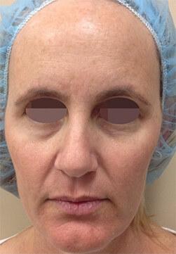 Efekt zabiegu Voluderm Legend - twarz kobiety przed zabiegiem