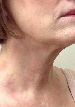 Efekt zabiegu Voluderm Legend ujędrniającego skórę - szyja kobiety po zabiegu