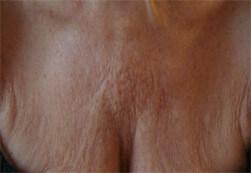 Efekt zabiegu Voluderm Legend ujędrniającego skórę - piersi kobiety przed zabiegiem