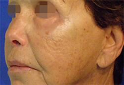 Efekt zabiegu Voluderm Legend ujędrniającego skórę - twarz kobiety po zabiegu
