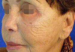 Efekt zabiegu Voluderm Legend ujędrniającego skórę - twarz kobiety przed zabiegiem