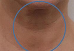 Efekt zabiegu Voluderm Legend ujędrniającego skórę - szyja kobiety przed zabiegiem