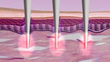 Efekt ujędrnienia skóry po zabiegu VoluDerm Legend