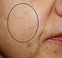 Efekty zabiegu geneO - rozjaśnienie i odżywienie skóry twarzy - efekt po