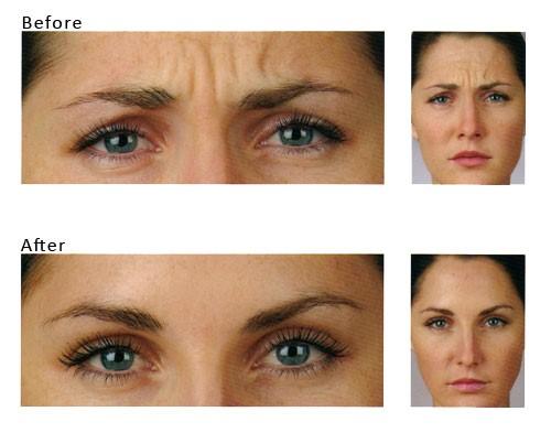 Botox - przed i po