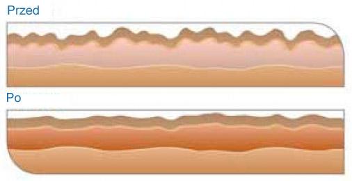 Spektakularne efekty dzięki DemaOXY - przed i po