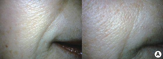 Fałdy nosowo-wargowe – znaczna poprawa w obrębie bruzd nosowo-wargowych