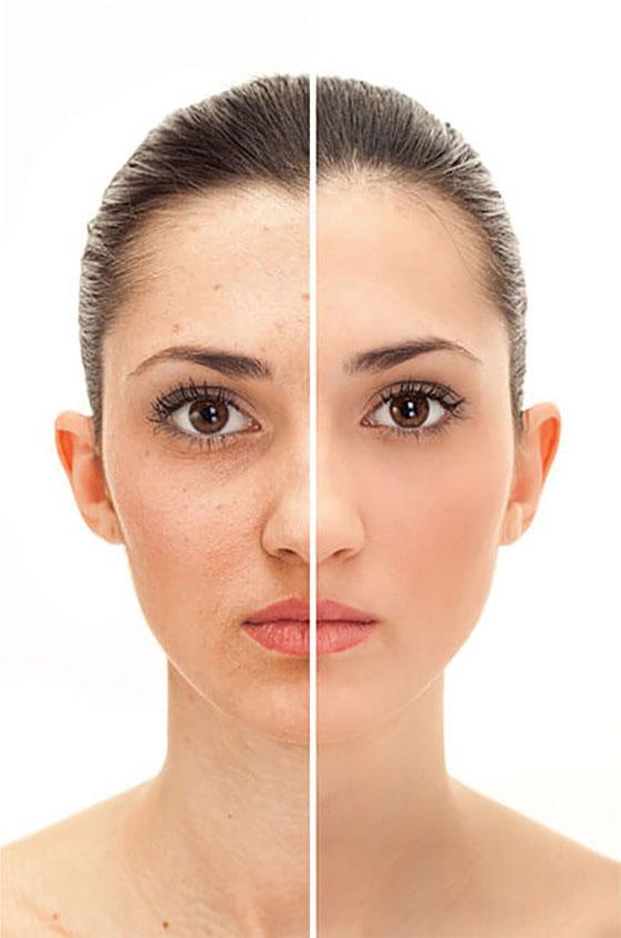 Mezoterapia igłowa - przed i po