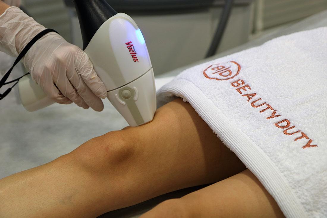 Depilacja laserowa nóg w klinice urody Beauty Duty